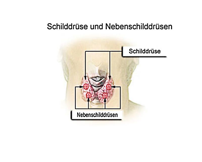 Minimalinvasive Schilddrüsen Operation ohne sichtbare Narbe